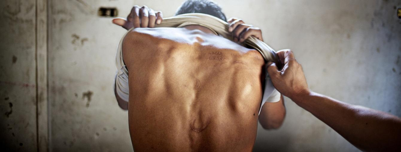Torture scars on a survivor's back in a cell