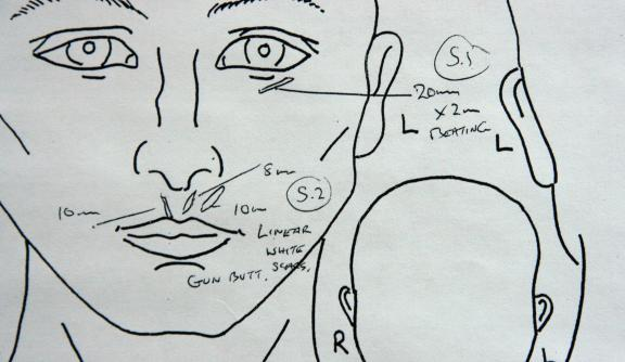An medical drawing of the face and head used to record scars for a medico-legal report